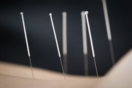 acupuncture-common-questions