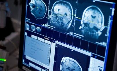 brain-tumor-mri-632