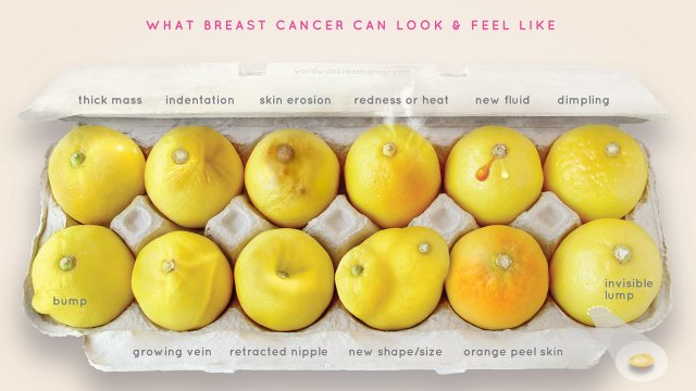 what_breast_cancer_looks_li